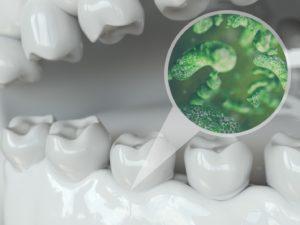 dental plaque illustration